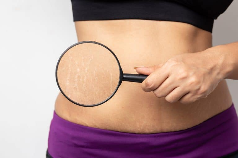 Everything About Stretch Marks During Pregnancy